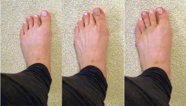 Kramp in grote tenen